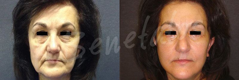 AestheticFacial Surgery-Facelift-Rhytidectomy-1
