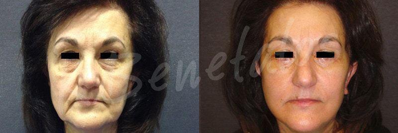 AestheticFacial Surgery-Facelift-Rhytidectomy-1