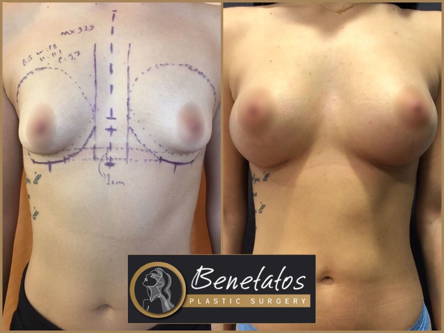 BeforeAfter-AestheticBreastSurgery-BreastAugmentationUsingSiliconeImplants-1
