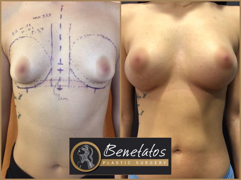 BeforeAfter-AestheticBreastSurgery-BreastAugmentationUsingSiliconeImplants-1