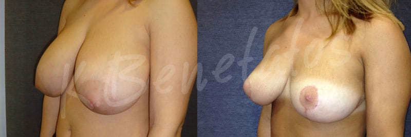 BeforeAfter-AestheticBreastSurgery-BreastReduction-1